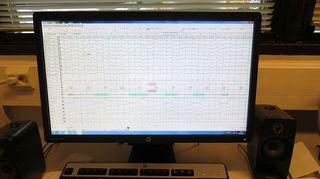 Näyttöpääte, jossa näkyy dataa nukkuvasta ihmisestä.