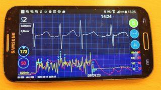 Kuva 0. Sydämen eteisvärinä kännykän näytöllä.
