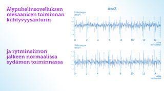 Kuva TY 4. Tässä alekkain sydämen mekaanisen toiminta kiihtyvyysanturilla akseli Z. Yläpuolella signaali eteisvärinässä ja alapuolella sydämen normaali rytmi.