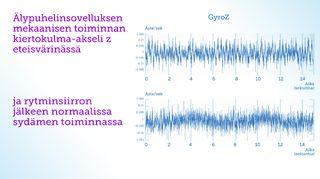 Kuva TY 5. Tässä alekkain sydämen mekaanisen toiminta kiertokulma-anturilla akseli Z. Yläpuolella signaali eteisvärinässä ja alapuolella sydämen normaali rytmi.
