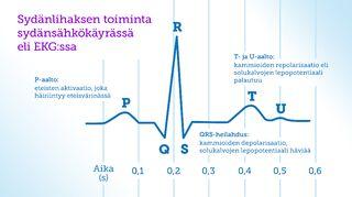 Kuva 1. Sydänsähkökäyrä eli EKG.