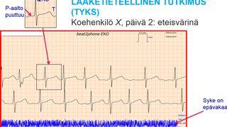 Kuva 3. VTT:n kehittämän EKG-laitteen tulos, joka on bluetooth-yhteydellä lähetetty älykännykkään. Sovellus antaa kuvan puhelimen näytölle. Tämä ihminen oli mukana TYKSin tutkimuksessa, jossa käytettiin laitteen ja sovelluksen prototyyppiä. Tulos voidaan lähettää pilven kautta lääkärille.
