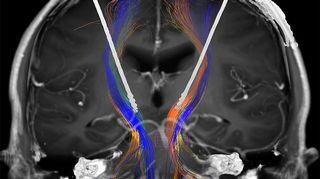 Kuva leikattavan ihmisen kalloista. Aivojen rakenteita ja hermoratoja voidaan tutkita tarkasti ja nähdä kuinka elektrodit asettuvat optimaaliseen kohtaan