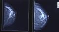 Röntgenkuva kasvaimesta rinnassa
