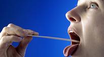 Audio: Naisen kurkkua tutkitaan lastaa apuna käyttäen.