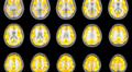 Depressiopotilaiden ja verrokkihenkilöiden aivokuvista tehty tilastollinen analyysi tietyn mielialaa säätelevän reseptorin toiminnasta.