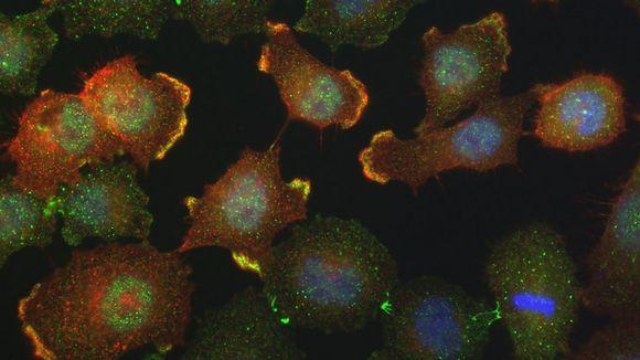Syöpäsoluja mikroskooppikuvassa.
