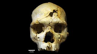 Mahdollisesti maailman ensimmäisen henkirikoksen uhrin kallo rekonstruoituna.
