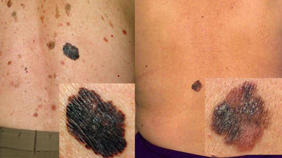 Pinnallisesti leviävä melanooma selässä.