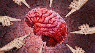 Sormia osoittamassa terapiapotilaan aivoja eri suunnista